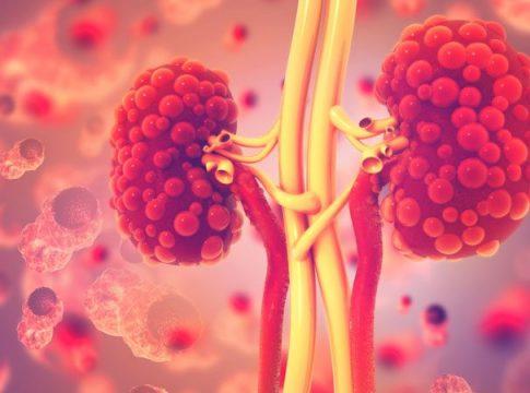 Kidney Disease Research